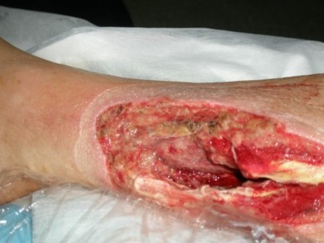 flesh-eating-disease-2